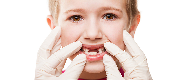 "Question for Dr Emma - ""Crumbly Teeth"""
