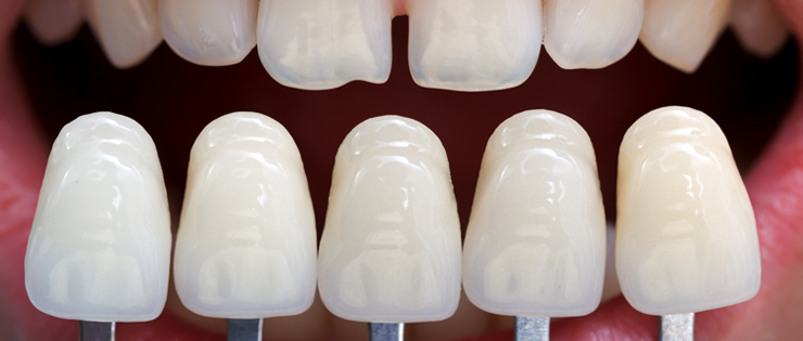 "Dental Health Article by Dr Emma - ""Failed Veneers"""
